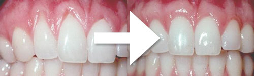 tissue-grafting